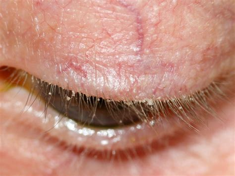 blepharitis images blepharitis images pictures photos
