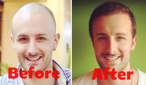 hair plugs v hair transplant the history of hair restoration surgery why we re