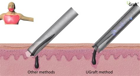 hair transplant tools the significance of punch configuration in fue