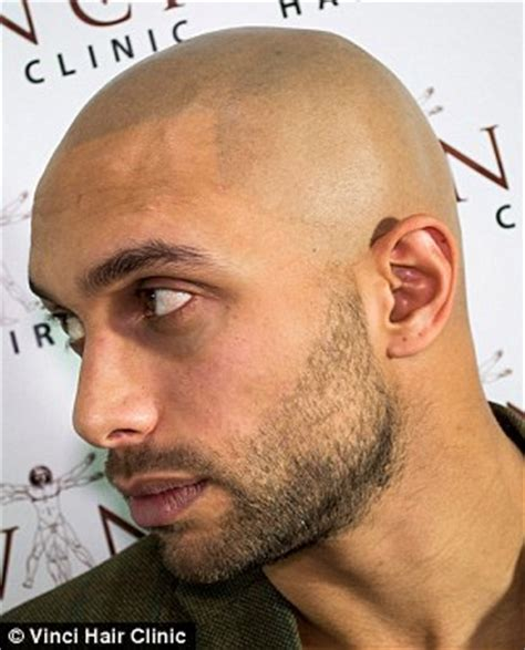 hairline tattoo bald turn to hair tattoos to creates the illusion of