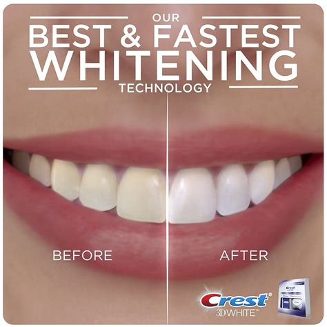 whitening strips review  dentalsreview