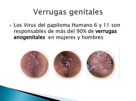 virus del papiloma humano vph fotos fotos de verrugas genitales imagenes de verrugas genitales