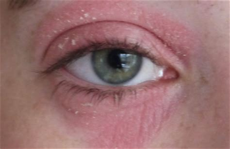 how to stop eye twitching fast naturally treatment and
