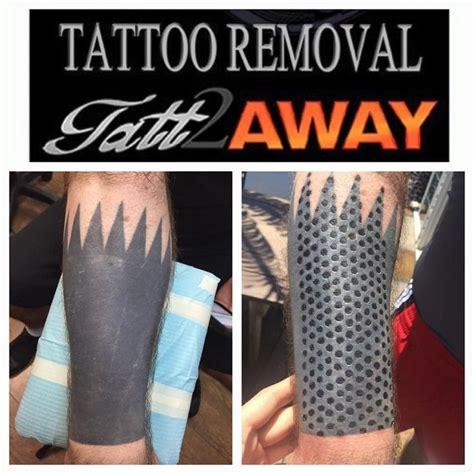 non laser tattoo removal 17 best tatt2away images on alternative