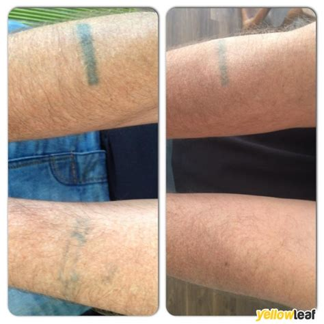 fake tattoo removal laser removal in stockport twist of reviews