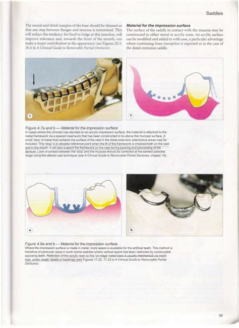 google design guidelines pdf a clinical guide to removable partial dentures bdj
