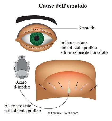 dolore interno all occhio orzaiolo all occhio interno esterno cause cura rimedi