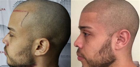 hair tattoo before and after hair and scalp pigmentation before and after pictures and