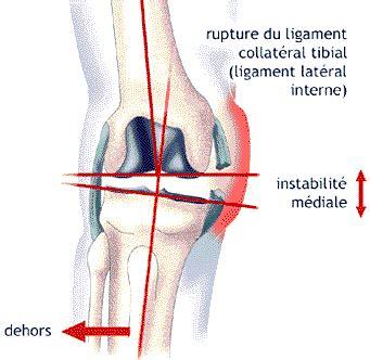 tiroir du genou douleur au genou chez les adolescents