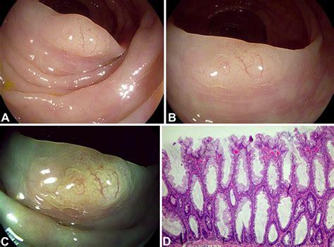 vascular pattern meaning novel irregular vascular pattern features of serrated