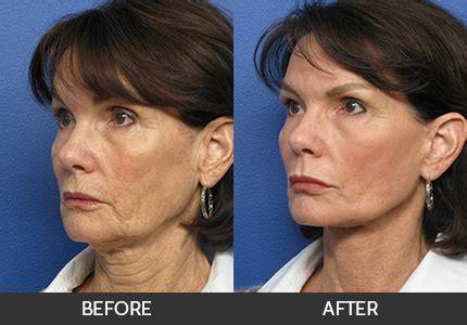 neck lift plastic surgery istanbul
