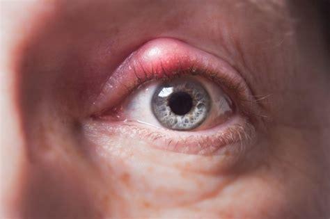orzaiolo interno palpebra superiore orzaiolo cause e fattori di rischio sintomi cura e