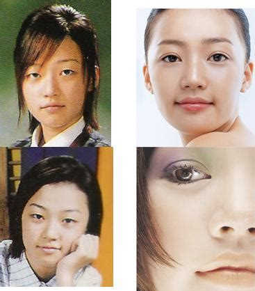 foto foto artis korea sebelum sesudah operasi plastik