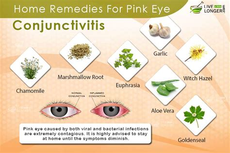 bacterial conjunctivitis home remedy driverlayer search