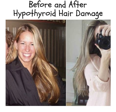 thyroid pattern hair loss hair loss causes in women newhairstylesformen2014 com