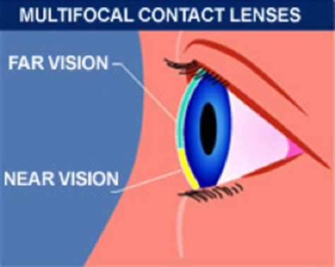 most comfortable multifocal contact lenses bifocal contacts long island bifocal contacts in westbury