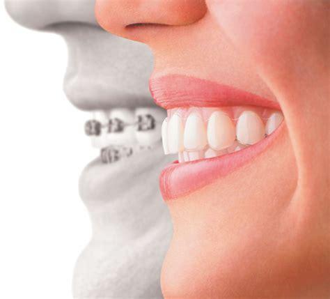 l apparecchio mobile ortodonzia poliambulatorio le vele torino