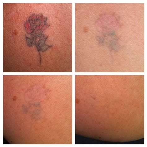 tattoo removal preston skin beautiful removal removal company