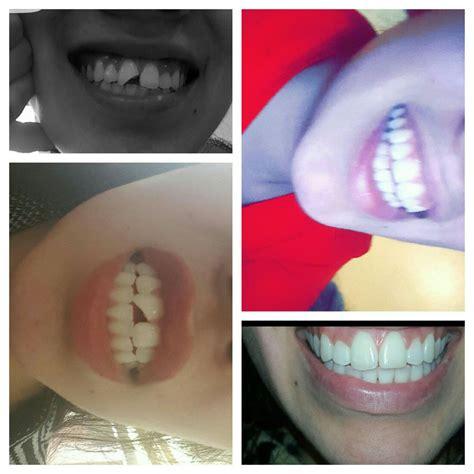 family tattoo roscoe village family dental of roscoe odontolog 237 a general 3332 n