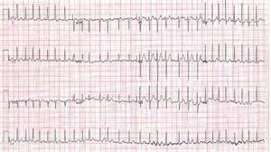 how to get out of afib at home atrial fibrillation or atrial flutter rate or rhythm