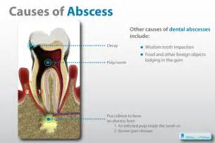 gum abscess home remedy abscess images gallery