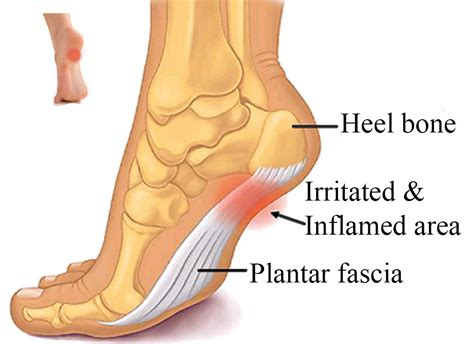 Planter Facia by Footzoneblog Plantar Fasciitis It S A Real In The