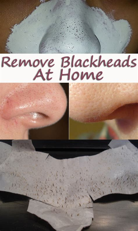 remove blackheads in a way my corner