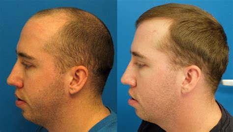hair transplant innovations patient 1915 hasson wong