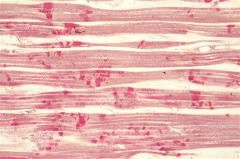 longitudinal section of skeletal muscle calphotos skeletal muscle longitudinal section 10x