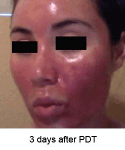 levulan blue light treatment for skin cancer does photodynamic therapy pdt work for acne levulan