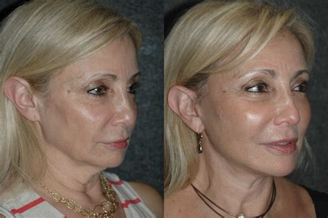 women jowls local anesthesia neck lift before and after 59 year old