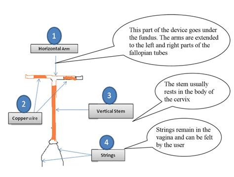 mirena diagram mirena iud diagram 28 images diagram of how are iud