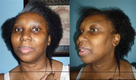 1 month after using ovation hair cell therapy and the valeriesworld june 2010