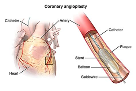 blocked arteries and open surgery atherosclerosis health encyclopedia of