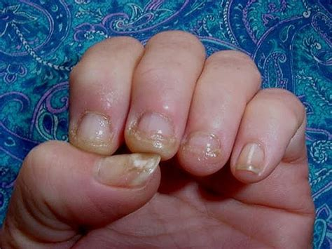 nail infection nail infection from manicure