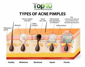 Blind Pimple Cause Home Remedies For Pimples Top 10 Home Remedies