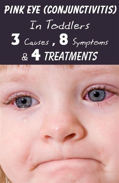 relief the counter pin pink eye treatment the counter on
