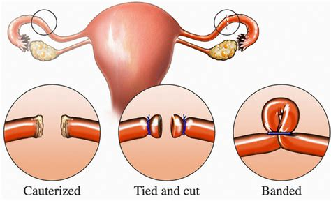 se puede salir embarazada con el periodo se puede quedar embarazada con las trompas ligadas