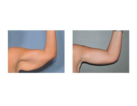 explore plastic surgery dr barry eppley arm lift brachioplasty archives