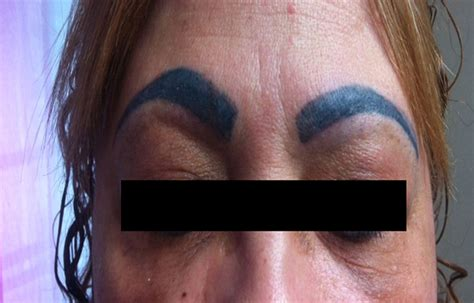 removal of permanent tattoo permanent makeup removal saubhaya makeup