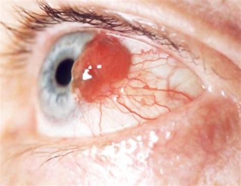 Obat Tradisional Mata Katarak obat katarak mata asli alami tradisional herbal resepi
