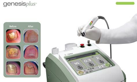 cutera laser genesis treatment cutera genesisplus laser system spa cielo cabo