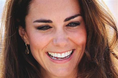 Ok I Admit It I Admire Kate At by 14 Best Images About W Invisalign On