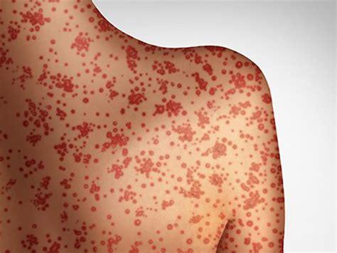 measles outbreak  people living  hiv hivgov