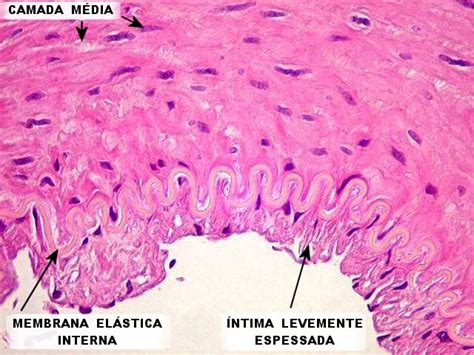 membrana elastica interna neupatimagem unic