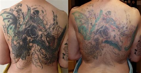 fade fast tattoo removal 2 removal sessions pleased yelp