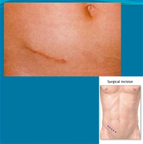 rash on abdomen after c section abdominal exam findings foreign language flashcards cram com