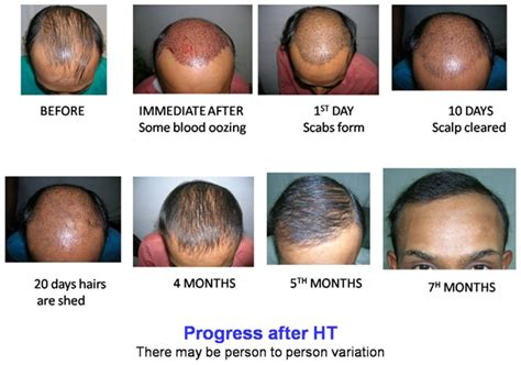 post hair transplant timeline dr bishan mahadevia s hair transplant clinic india