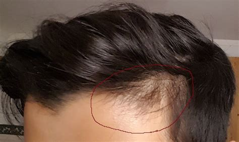 hair losing pigment at temples uneven hairline here s the best natural way to fix it fast