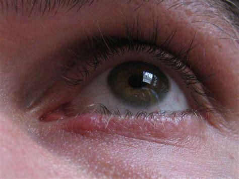orzaiolo interno cura il calazio patologia simile all orzaiolo 183 sanioggi it